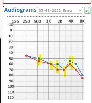 v.4.29.9 breaks alignment
